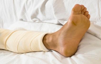Broken Bones and Fractures