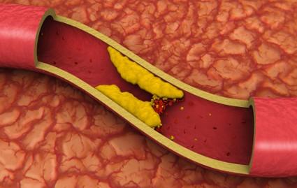 Cholesterol (High)